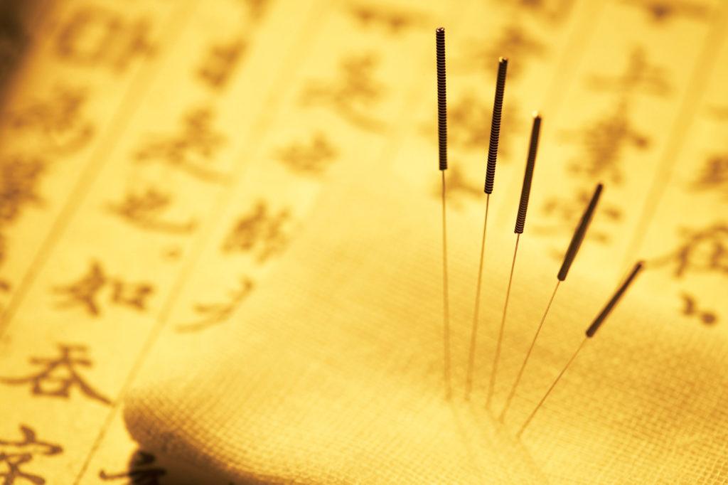 kineska akupunktura - akupunktura beograd - Ordinacija Akupraksa - akupresura - akupunktura iskustva - akupunktura forum - alternativna medicina - zdravlje - mrsavljenje - tretmani