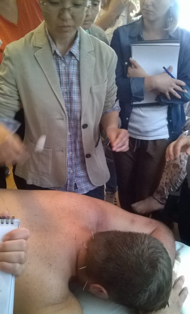 kineska akupunktura - akupunktura beograd - Ordinacija Akupraksa - akupresura - akupunktura iskustva - akupunktura forum - alternativna medicina - zdravlje - mrsavljenje - tretmani - akupunktura cena - akupunktura forum
