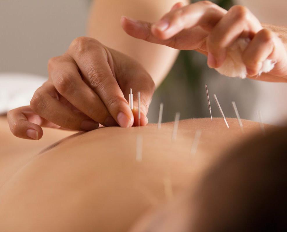 kineska akupunktura - akupunktura beograd - Ordinacija Akupraksa - akupresura - akupunktura iskustva - akupunktura forum